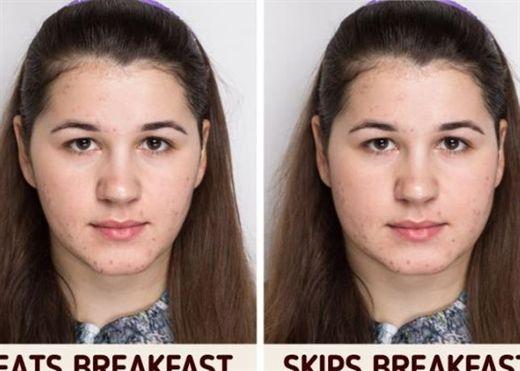 Điều gì sẽ xảy ra với cơ thể bạn nếu bạn bỏ bữa sáng mỗi ngày?