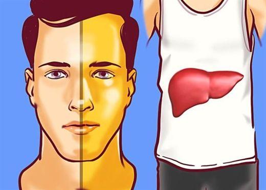 8 dấu hiệu của bệnh gan cho thấy bạn cần đi khám càng sớm càng tốt