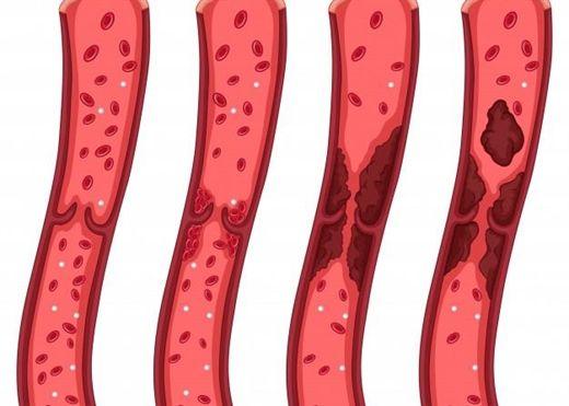 Cục máu đông có thể dẫn tới đau tim, đột quỵ: Đâu là triệu chứng cần lưu ý?