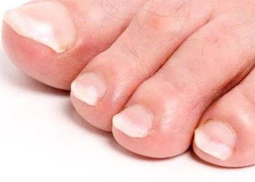 Các dấu hiệu như bàn chân lạnh, móng chân có nốt trắng... nói gì về sức khỏe của bạn?