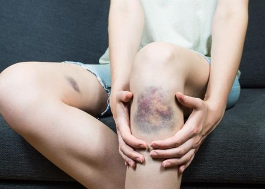 Thường xuyên bị bầm tím không lý do, triệu chứng của nhiều bệnh nguy hiểm