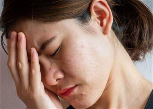 Các biện pháp tốt nhất giúp ngăn ngừa mụn do căng thẳng