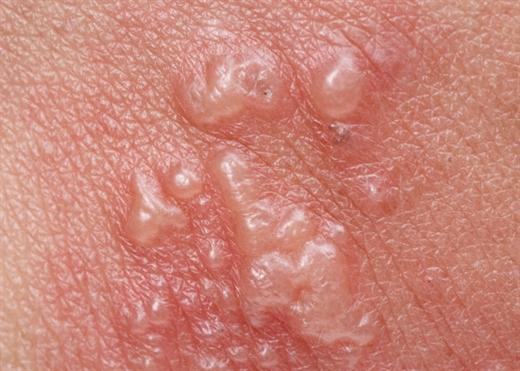 5 thay đổi trên da là dấu hiệu cảnh báo bệnh tiểu đường