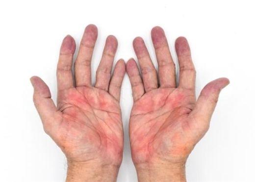 Nếu nhận thấy dấu hiệu này xuất hiện trên tay, hãy đi kiểm tra ngay sức khỏe lá gan