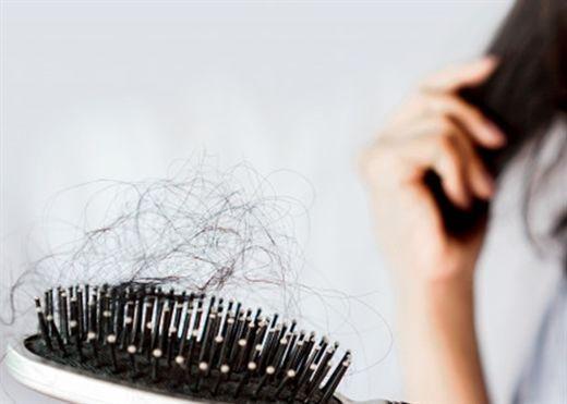 9 cách hiệu quả giúp ngăn ngừa rụng tóc và hói đầu