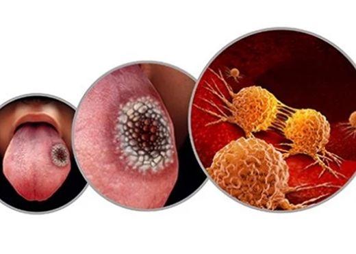 Ung thư lưỡi nguy hiểm nhưng rất khó nắm bắt triệu chứng, chuyên gia cảnh báo nên lưu ý các dấu hiệu này