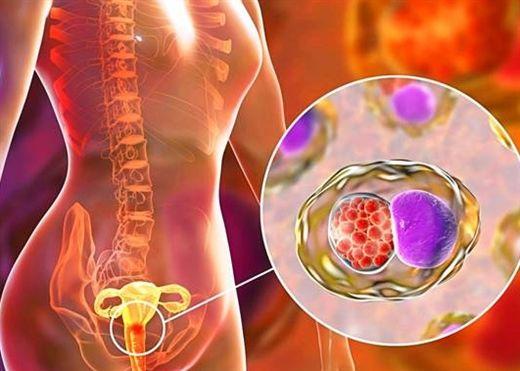 Ung thư cổ tử cung và những điều cần biết