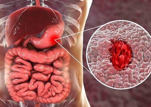 Viêm dạ dày: Nguyên nhân, cách điều trị và phòng ngừa