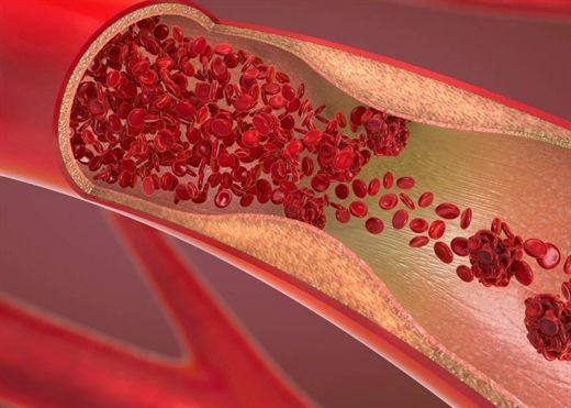 Tìm ra phương pháp điều trị mới cho tình trạng cục máu đông liên quan đến vaccine COVID-19