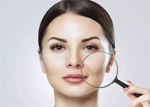 Tiết lộ thủ phạm thực sự đằng sau sự lão hóa trên khuôn mặt