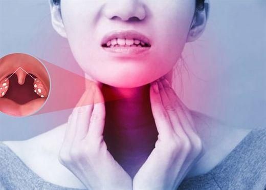 Những điều cần biết về viêm amidan, bạn không được bỏ qua để tránh biến chứng nguy hiểm