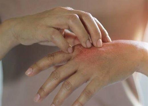 Hướng dẫn chăm sóc cơ bản cho bệnh nhân tiểu đường để tránh các vấn đề khó chịu về da