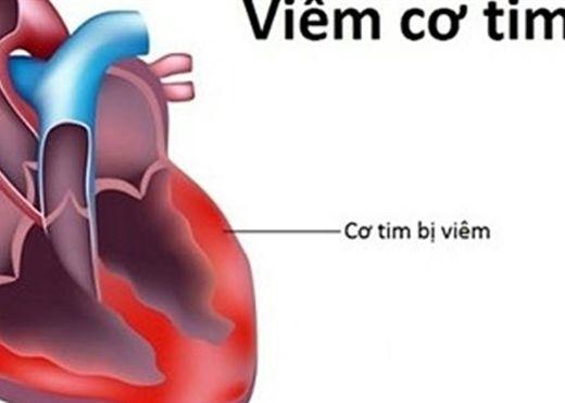 Chẩn đoán và điều trị chứng viêm cơ tim sau tiêm vaccine COVID-19 như thế nào?