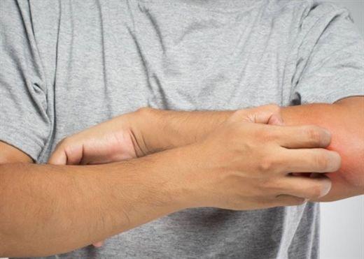 Dấu hiệu cảnh báo bệnh ung thư cánh mày râu thường chủ quan bỏ qua