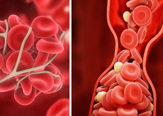 10 cách tự nhiên ngăn ngừa cục máu đông, giảm nguy cơ đau tim và đột quỵ