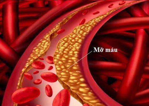 Những điều cần biết về máu nhiễm mỡ - căn bệnh thời đại 4.0