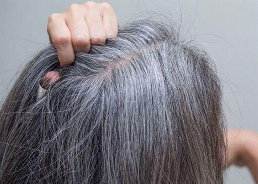 Những thực phẩm khiến tóc bạc sớm chắc chắn bạn không ngờ tới