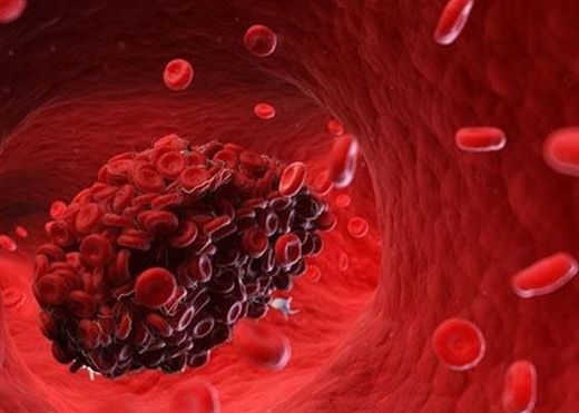 Vì sao tình trạng cục máu đông nguy hiểm lại dễ xảy ra ở bệnh nhân COVID-19 nặng?