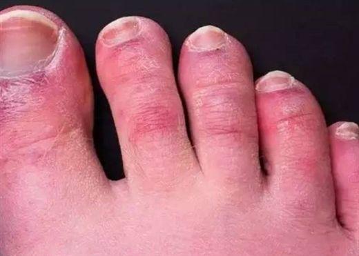 Bạn đã biết gì về tình trạng 'ngón chân COVID'