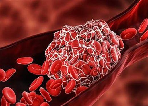 Tìm hiểu về Cục máu đông - nguyên nhân chính gây đau tim, đột quỵ, các gánh nặng bệnh tật khác