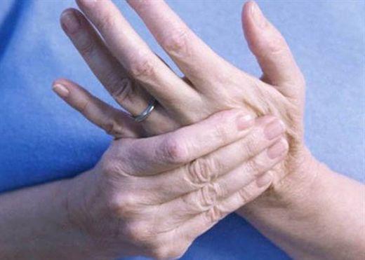 5 triệu chứng bất thường của viêm khớp dạng thấp không bao giờ nên bỏ qua