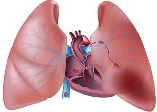 Thuyên tắc phổi - Sát thủ thầm lặng