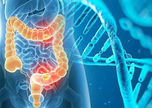 Ung thư đại trực tràng ngày càng phổ biến tại Việt Nam, đây là lý do vì sao cần sàng lọc nội soi sớm