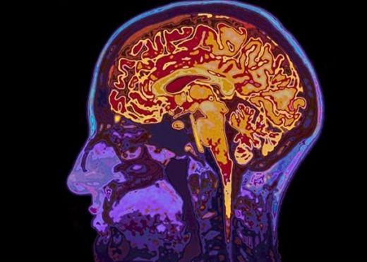Xuất hiện bọc mủ trong não do dùng tay bẩn nặn mụn, người đàn ông phải nhập viện gấp
