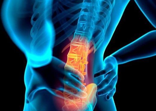 Đau lưng và cách xử trí một số trường hợp đau lưng thường gặp