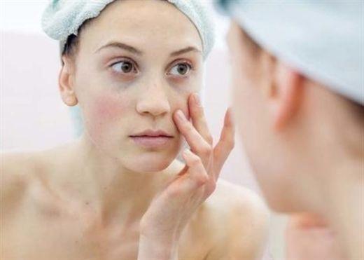 5 dấu hiệu trên da vào mùa đông cho thấy bạn cần thay đổi chế độ ăn uống