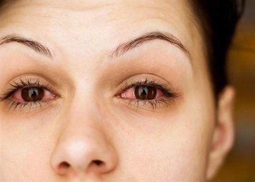 Thường xuyên bị chứng ngứa mắt gây khó chịu, hãy xem bạn đang bị gì và cách khắc phục ra sao