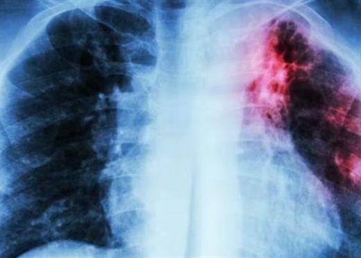 WHO cảnh báo số ca tử vong do bệnh lao đang gia tăng toàn cầu do đại dịch COVID-19