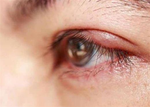 Các thành phần trang điểm mắt dễ gây kích ứng nhất và 4 nguyên nhân khác khiến mắt bỏng rát