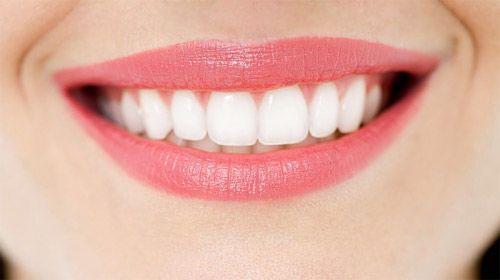 Tẩy trắng răng có thực sự an toàn?
